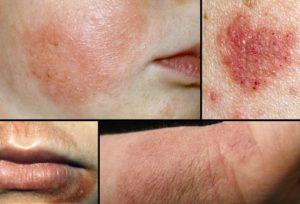 eczema-pics