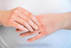 Dermatitis Treatment